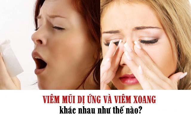 Viêm mũi dị ứng và viêm  xoang khác nhau như thế nào?
